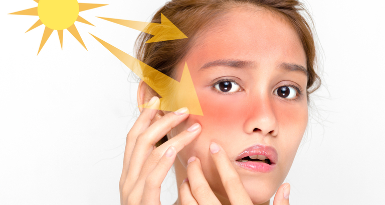 紫外線をうける女性